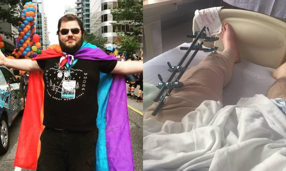Justin Morissette portant un drapeau arc-en-ciel comme une cape / sa jambe avec du métal après la chirurgie