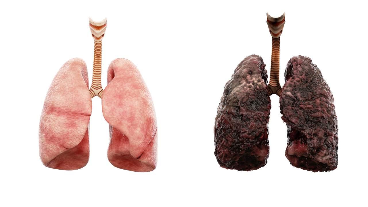 La recherche montre que le lien entre le vapotage et les effets à long terme de l'infection au COVID19 chez les fumeurs de cigarettes reste inconnu