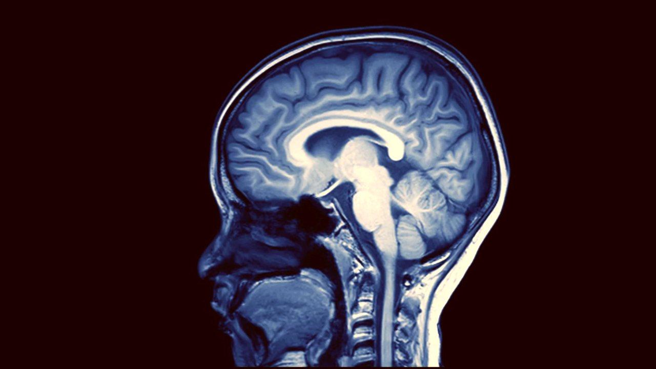 Journée mondiale de la maladie d'Alzheimer La principale cause de démence est-elle devenue une crise de santé publique
