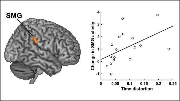 Le temps passe certains jours, rampe sur d'autres: une étude localise les neurones fatigués qui influencent notre perception du temps