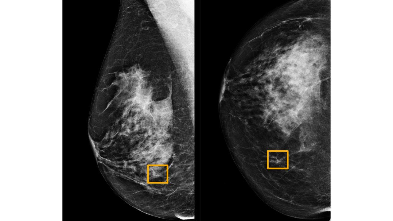 Le cancer du sein est sous-diagnostiqué en Inde Provoque des tests sur les options de traitement à connaître
