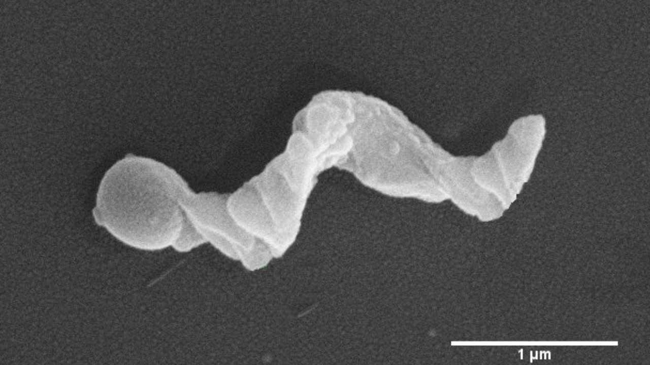 Des chercheurs indiens utilisent des nanomoteurs comme détecteurs capables de lire l'environnement du cancer