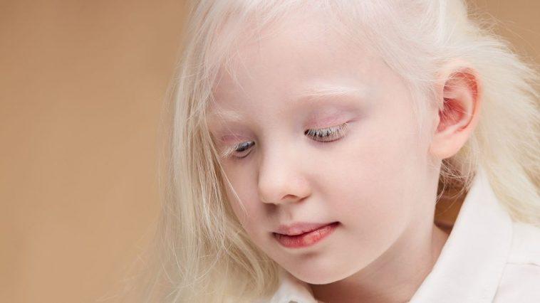 Et Si Tous Les Humains Sur Terre Avaient L'albinisme?