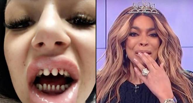 Les dentistes mettent en garde contre les facettes après que la tendance du rasage des dents est devenue virale sur TikTok