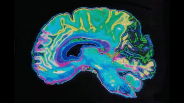 Les Faisceaux Laser Donnent Aux Neuroscientifiques De Nouvelles Informations Sur
