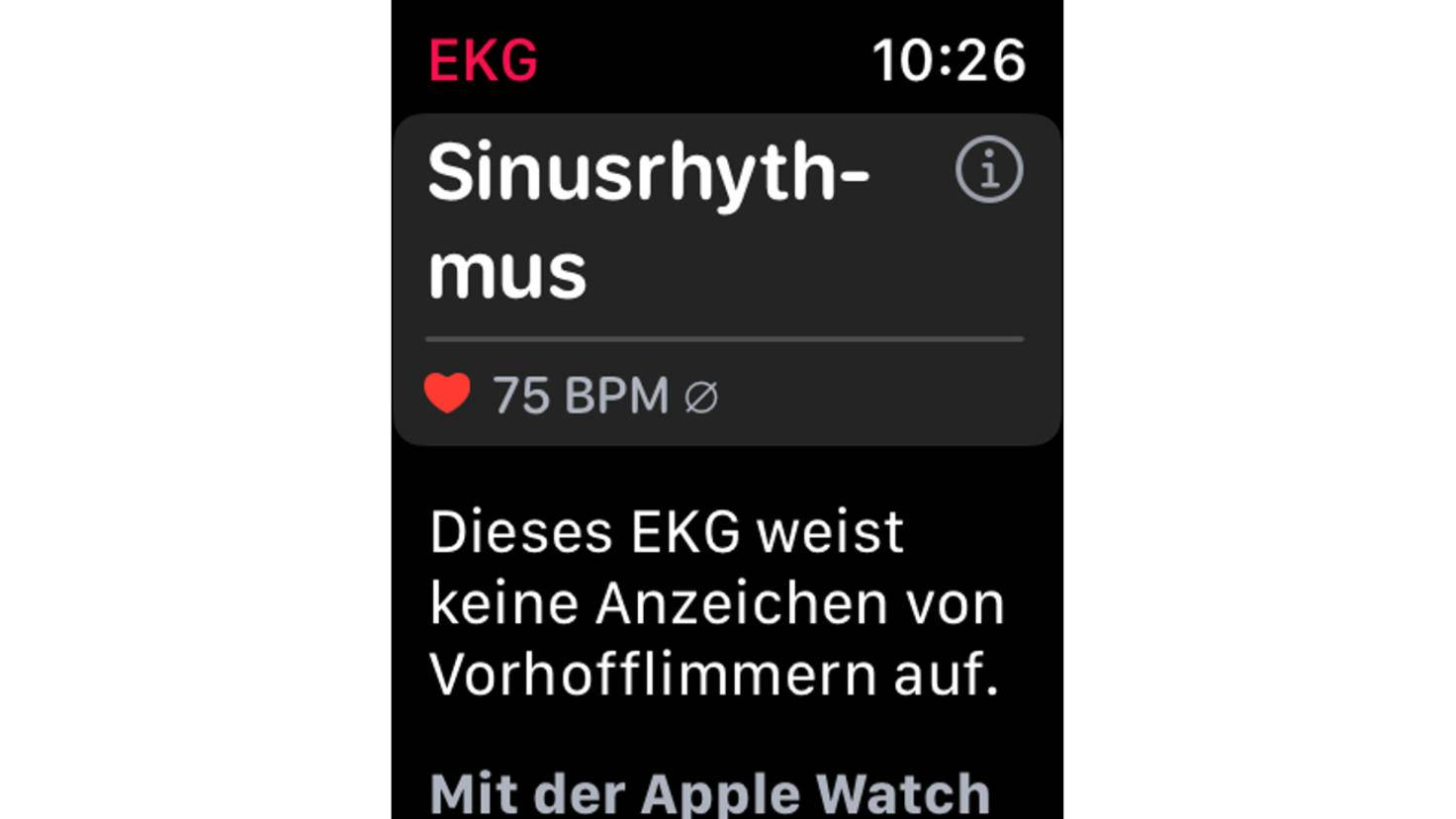 Application Apple Watch EKG