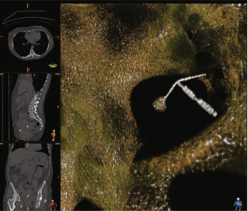 CT scan montrant le DIU perforant la vessie, avec une pierre attachée à un bras du DIU.