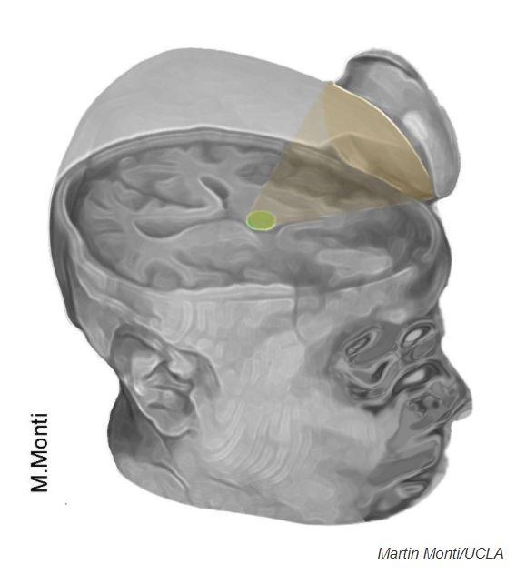 Les chercheurs ont utilisé un appareil en forme de soucoupe pour diriger les impulsions ultrasoniques vers le thalamus du cerveau.