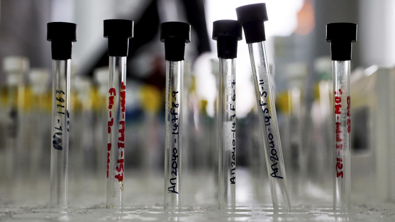 Les patients cancéreux nécessitant une intervention chirurgicale augmenteront de 5 millions dans le monde d'ici 2040 Étude Lancet