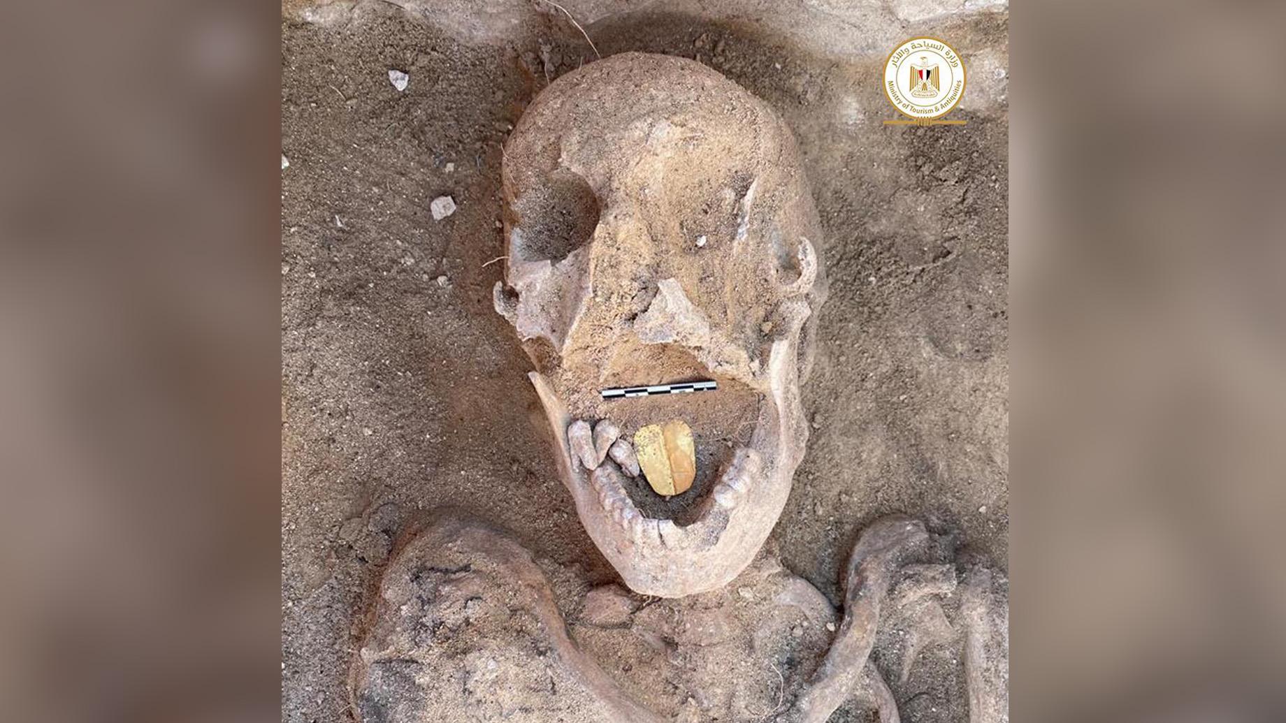 Cette momie de 2000 ans a été enterrée avec une langue dorée, susceptible d'aider le défunt à parler dans l'au-delà.