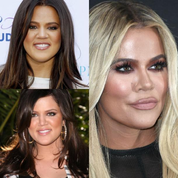khloe kardashian photos avant et après