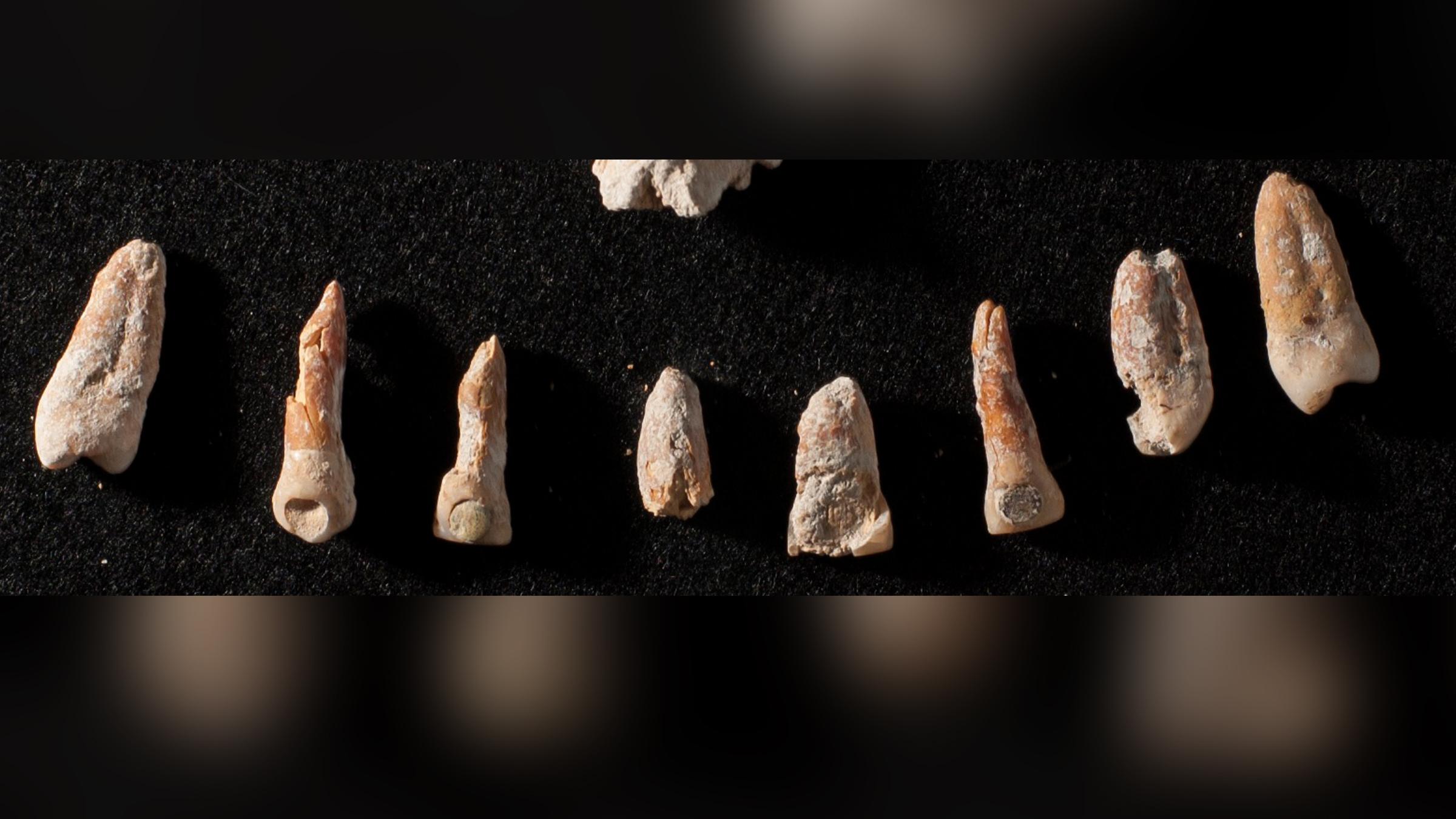 L'homme maya avait des incrustations dentaires de jade et de pyrite, bien qu'une incrustation soit tombée à l'âge adulte.