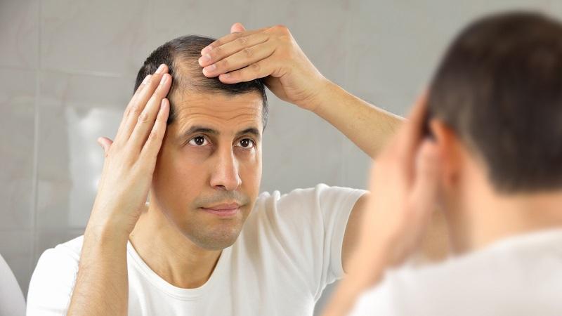 27% considèrent la personne chauve comme laide et 10% infectée, 6,2% hésitent à leur donner des emplois
