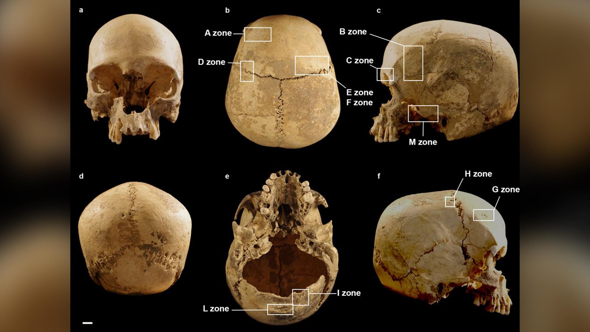 Différentes vues du crâne de la femme néolithique.  Les cases indiquent les zones présentant des lésions à l'extérieur du crâne.