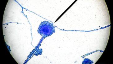 Les Infections à `` Champignon Noir '' Potentiellement Mortelles En