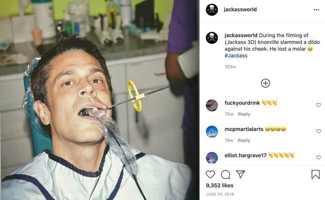 Johnny Knoxville a perdu une molaire lors du tournage de Jackass 3 (Crédit: Instagram / jackassworld)