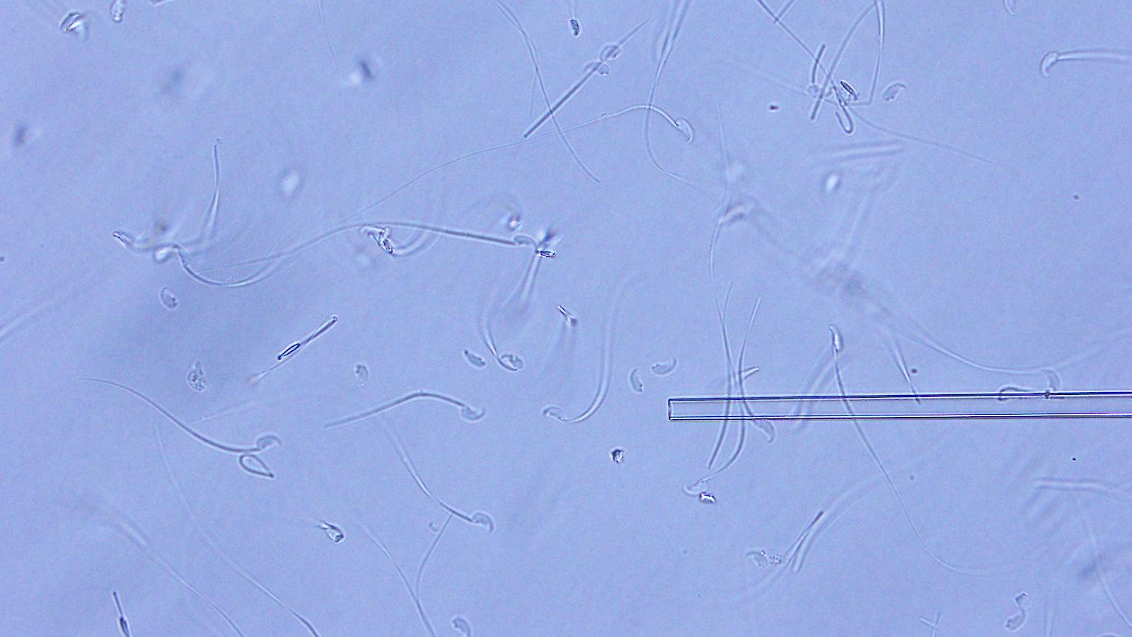 Les ampoules ont été renvoyées de l'ISS vers la Terre, puis les spermatozoïdes lyophilisés ont été réhydratés par l'eau.  Vous pouvez utiliser ces spermatozoïdes pour la fécondation in vitro immédiatement, pas besoin d'attendre 3 minutes.