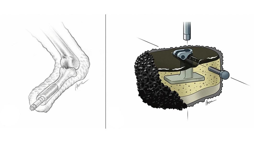 Diverses couches de matériaux souples cohésifs sont situées autour de la fixation métallique centrale à la prothèse.  Une surface en caoutchouc rugueux offre traction et stabilité.