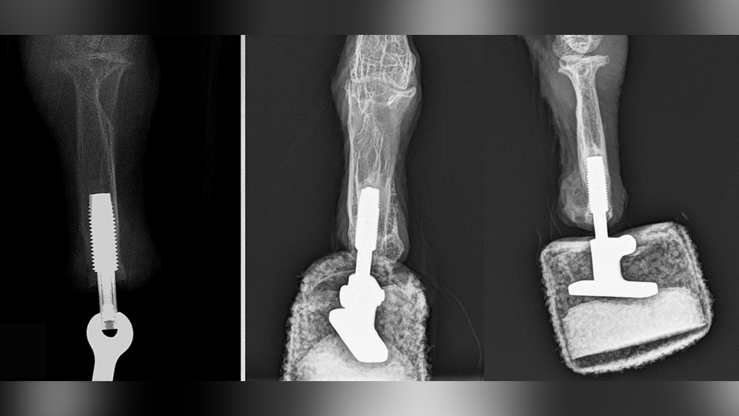 Ces radiographies montrent l'implant pendant la chirurgie (à gauche) et après la chirurgie avec la prothèse montée (à droite).
